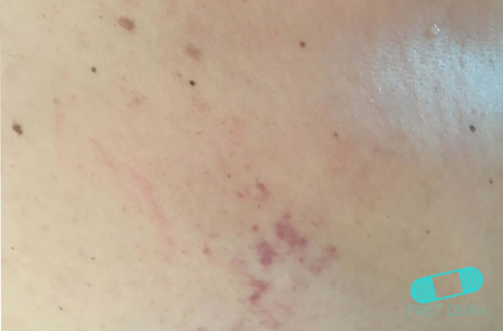 Herpes Zoster (Shingles) (06) skin [ICD-10 B02]