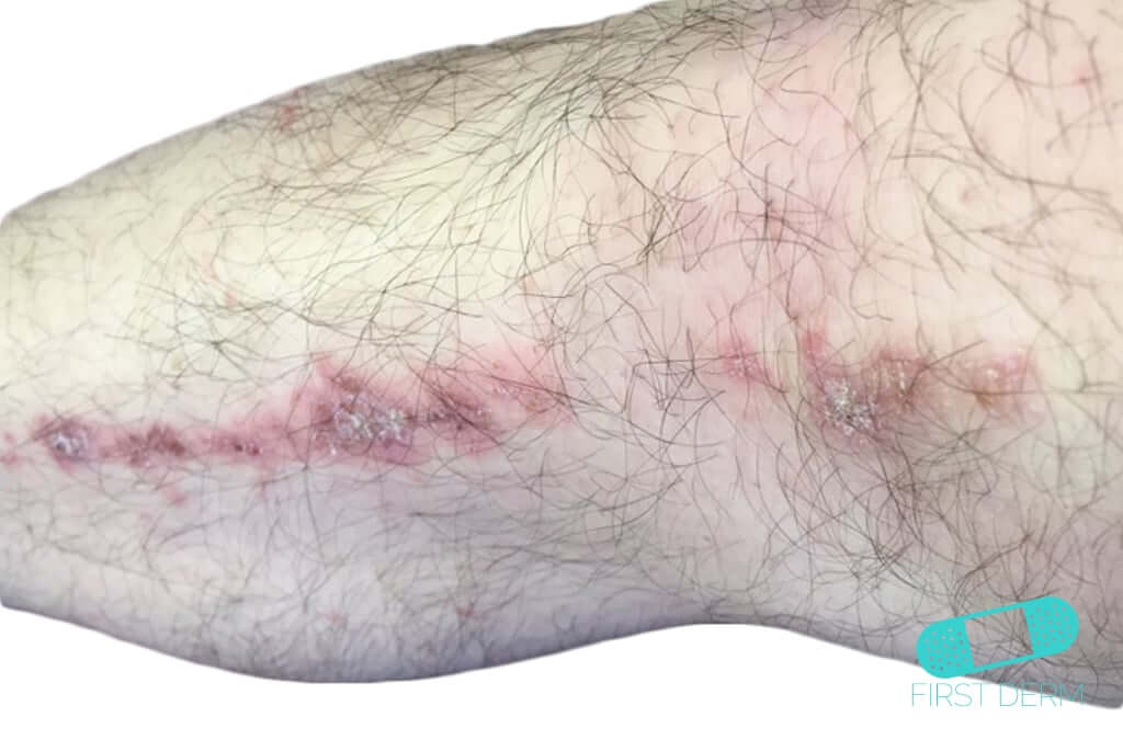 Herpes Zoster (Shingles) (18) arm [ICD-10 B02]