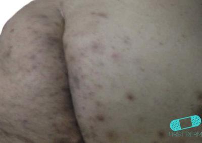 Hidradenitis Supurativa (04) piel [ICD-10 L73.2]
