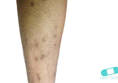 Hiperpigmentación (01) brazo [ICD-10 L81.4]