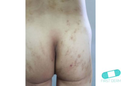 Hiperpigmentación (07) nalgas [ICD-10 L81.4]