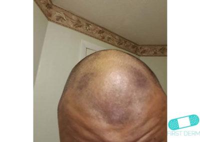 Hiperpigmentación (09) cabeza [ICD-10 L81.4]