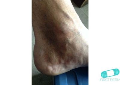 Hiperpigmentación (19) pie [ICD-10 L81.4]