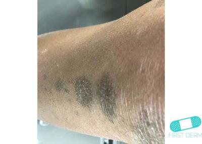 Hiperpigmentación (20) pierna [ICD-10 L81.4]
