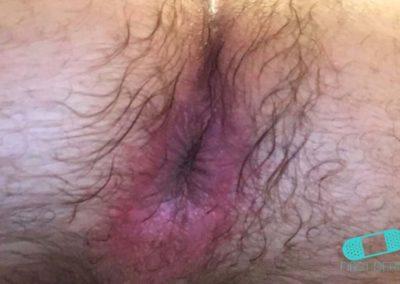 Hudsvamp (kutan candida) (04) anus [ICD-10 L02.91]