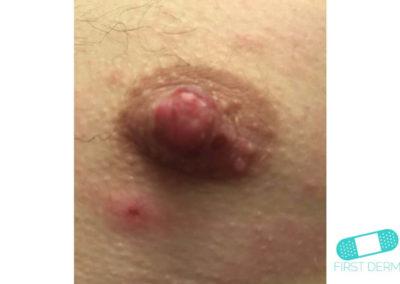 Hudsvamp (kutan candida) (06) bröst [ICD-10 L02.91]