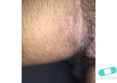 Hudsvamp (kutan candida) (07) ljumska [ICD-10 L02.91]