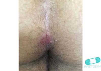 Hudsvamp (kutan candida) (08) anus [ICD-10 L02.91]