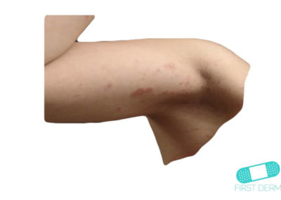 Hudsvamp (kutan candida) (10) arm [ICD-10 L02.91]