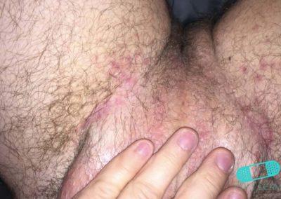 Hudsvamp (kutan candida) (13) pubis [ICD-10 L02.91]