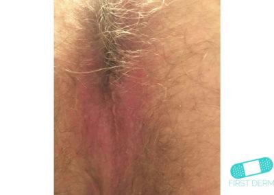 Hudsvamp (kutan candida) (14) anus [ICD-10 L02.91]