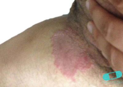 Hudsvamp (kutan candida) (17) pubis [ICD-10 L02.91]