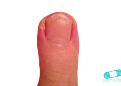 Hyperkeratos (02) finger [ICD-10 A67.1]
