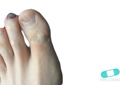 Hyperkeratosis (03) thumb foot [ICD-10 A67.1]