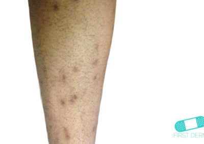 Hyperpigmentation (01) arm [ICD-10 L81.4]