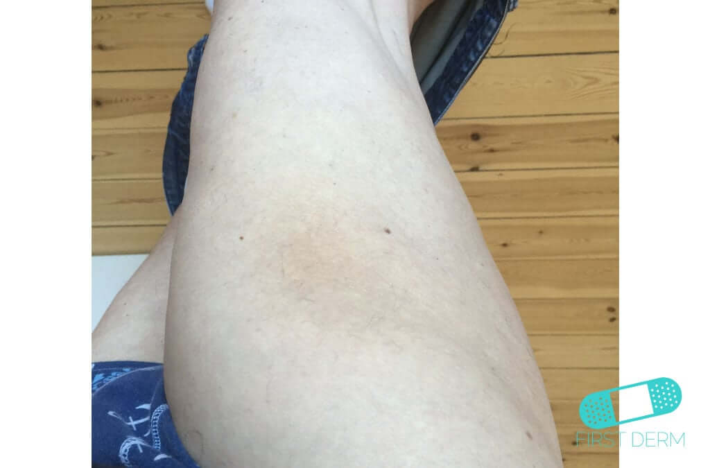 Hyperpigmentation (03) leg [ICD-10 L81.4]