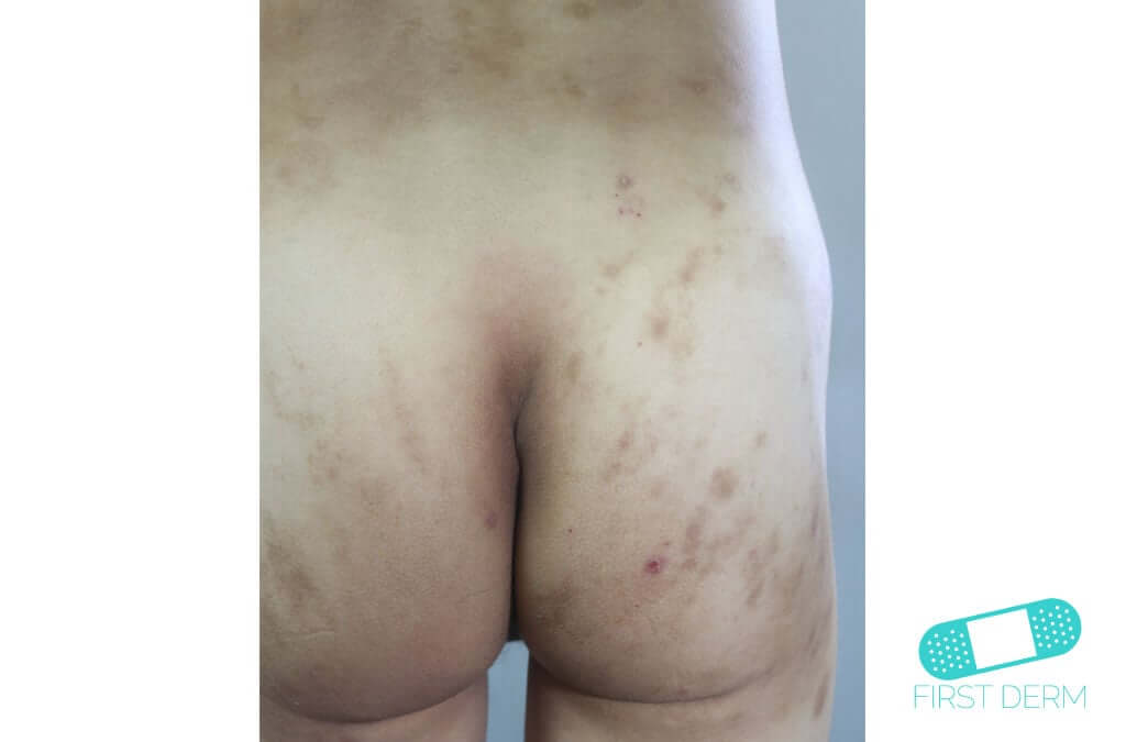 Hyperpigmentation (07) buttocks [ICD-10 L81.4]