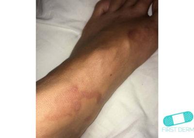 Hyperpigmentation (11) foot [ICD-10 L81.4]
