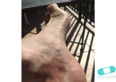 Hyperpigmentation (12) foot [ICD-10 L81.4]