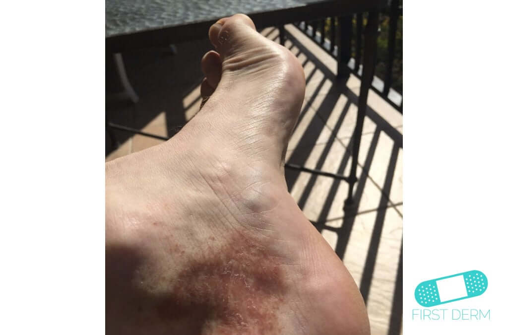 Hyperpigmentation (12) foot [ICD-10 L81.4]