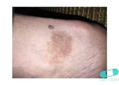 Hyperpigmentation (13) foot [ICD-10 L81.4]