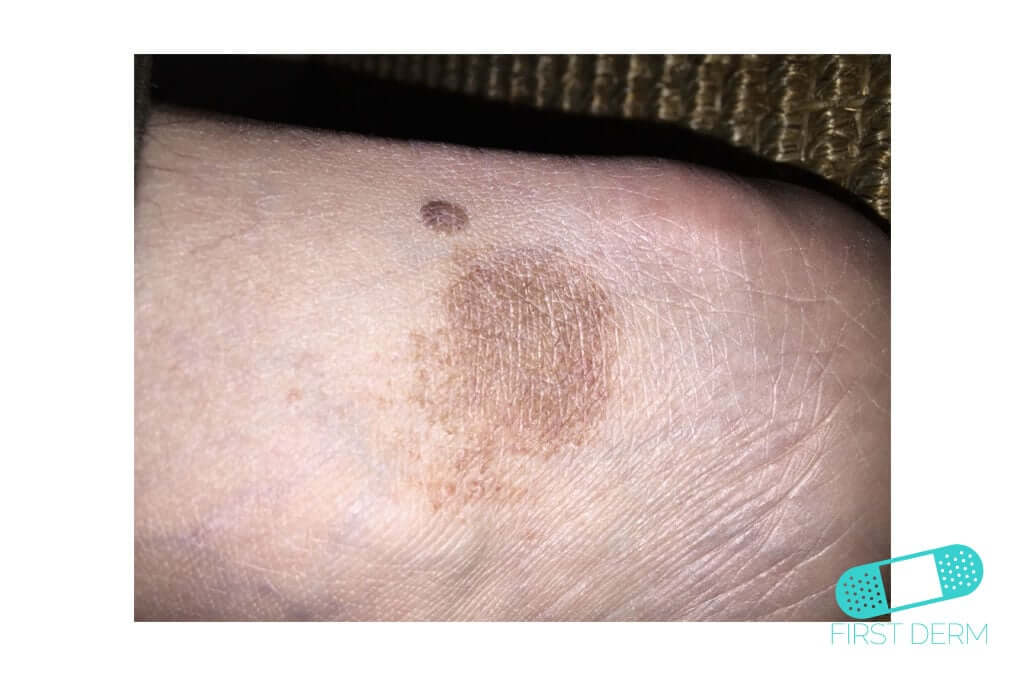 Hyperpigmentation (13) foot [ICD-10 L81.4]
