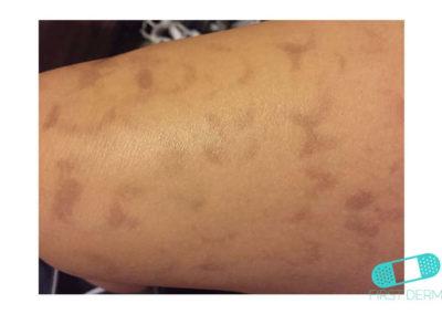 Hyperpigmentation (15) leg [ICD-10 L81.4]