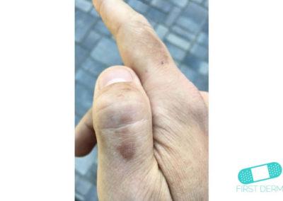 Hyperpigmentation (16) hand [ICD-10 L81.4]
