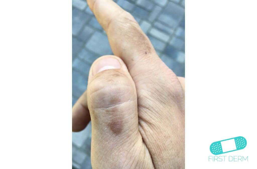 Hyperpigmentation (16) hand [ICD-10 L81.4]