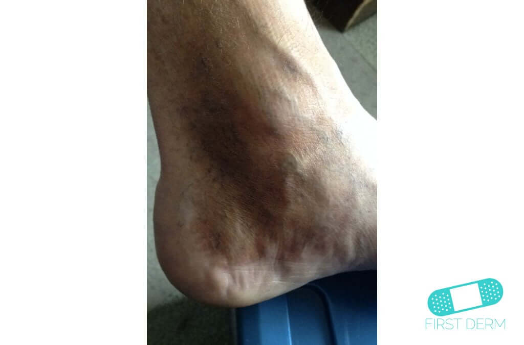 Hyperpigmentation (19) foot [ICD-10 L81.4]