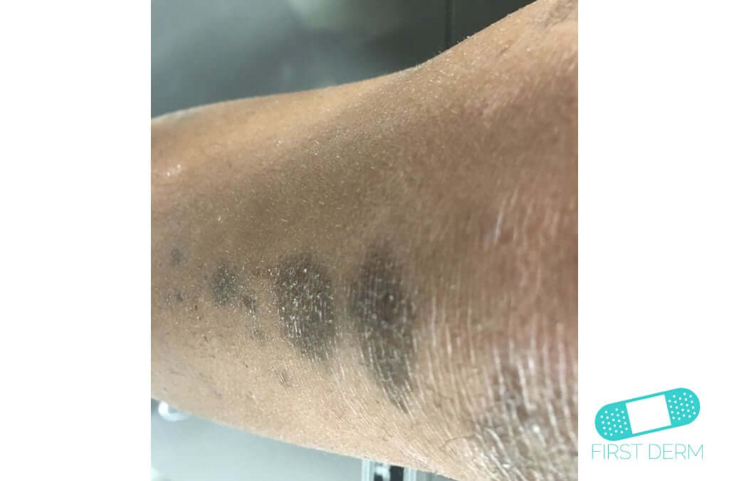 Hyperpigmentation (20) leg [ICD-10 L81.4]