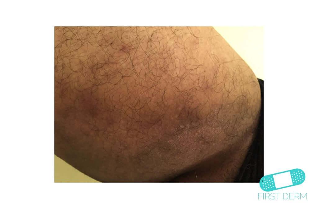 Hyperpigmentation (24) leg [ICD-10 L81.4]