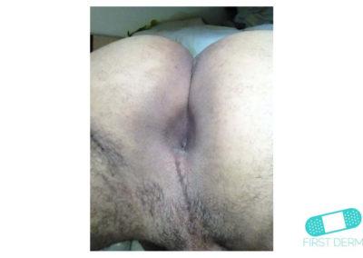 Hyperpigmentering (23) anus [ICD-10 L81.4]