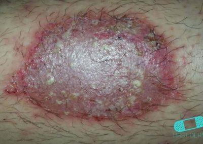 Impétigo (infección de escuela) (06) piel [CD-10 L01.00]