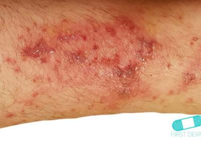 Impétigo (infección de escuela) (08) brazo [CD-10 L01.00]