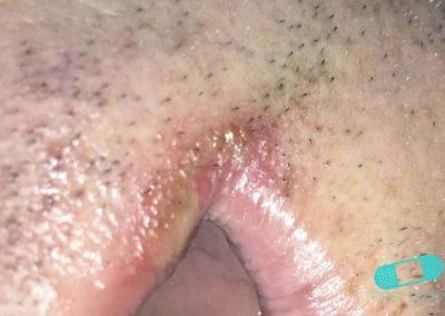 Impétigo (infección de escuela) (11) boca [CD-10 L01.00]