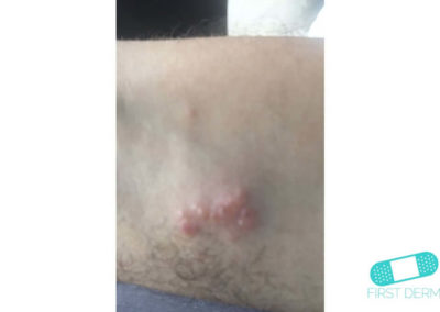 Insektsbett (09) arm [ICD-10 T63.4]