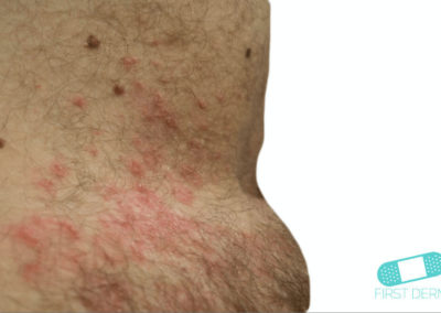 Intertrigo (01) piel [ICD-10 L30.4]