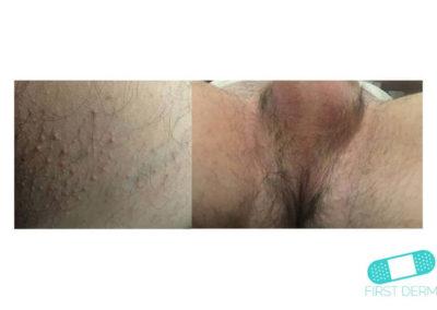 Intertrigo (02) perineo [ICD-10 L30.4]
