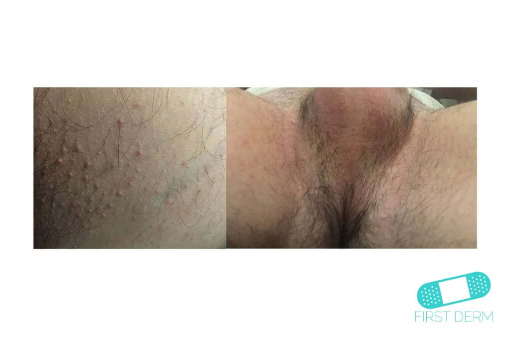 Intertrigo (02) perineum [ICD-10 L30.4]