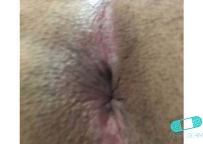 Intertrigo (05) anus [ICD-10 L30.4]