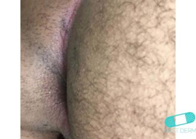 Intertrigo (06) anus [ICD-10 L30.4]
