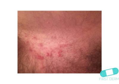 Intertrigo (07) pubis [ICD-10 L30.4]
