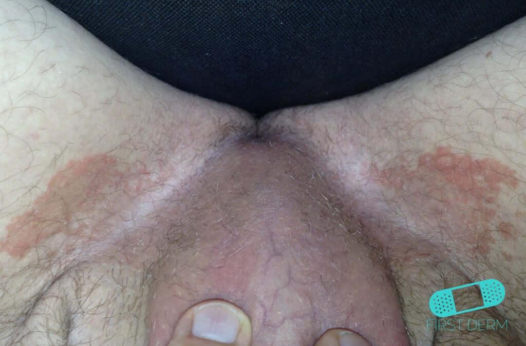 Intertrigo (11) crotch man [ICD-10 L30.4]