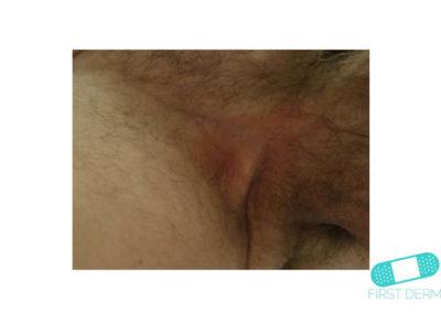 Intertrigo (15) entrepierna [ICD-10 L30.4]