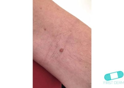 Intradermal nevus (13) lower arm [ICD-10 D22.9]