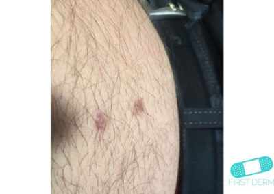 Intradermal nevus (16) abdomen [ICD-10 D22.9]