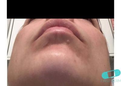 Irritationseksem (icke-allergiskt kontakteksem) (03) haka [ICD-10 L24.9]