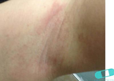 Irritationseksem (icke-allergiskt kontakteksem) (04) hud [ICD-10 L24.9]