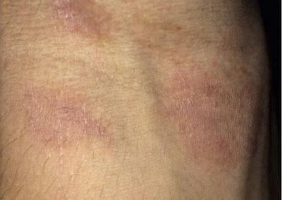 Irritationseksem (icke-allergiskt kontakteksem) (05) ärm [ICD-10 L24.9]